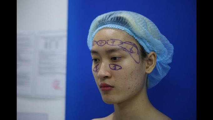 Các bác sĩ tiến hành hội chuẩn, tính toán các phương pháp để thực hiện ca phẫu thuật cho Trần Ngọc Sang.