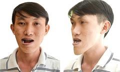 Chàng xe ôm 27 năm tủi phận vì bị miệt thị 'mặt lưỡi cày'