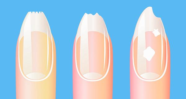 Thay đổi trên móng tay Móng tay nhợt nhạt và mỏng có thể là dấu hiệu của thiếu máu và sắt. Móng tay vàng có thể biểu hiện của bệnh gan, dạ dày hoặc nhiễm nấm. Còn trường hợp móng tay xuất hiện những đốm trắng cho thấy thiếu kẽm, đồng, iốt, và móng có thể trở nên rất giòn khi phải đối mặt với tình trạng thiếu vitamin, canxi, sắt và beta-carotene trong cơ thể    GOOGLE+  CHIA SẺ   EMAIL  LIKE VOV Loading... Tin tài trợ   Bà Vân đã vượt qua 30 năm SỎI THẬN dẫn đến SUY THẬN nhờ biết đến cách đơn giản này! https://benhthan.vn/   Ai mà bị GAI CỘT SỐNG THẮT LƯNG thì cập nhật ngay kinh nghiệm của Anh Mạnh lái ghe! https://thoatvidiadem.vn/ BÌNH LUẬN NỘI DUNG  tối thiểu 10 chữ tiếng Việt có dấu không chứa liên kết  Gửi bình luận TIN TỨC SỨC KHỎE MỚI NHẤT  10 sai lầm nghiêm trọng khi làm đẹp khiến bạn nhanh già, nhiều vết nhăn  10 sai lầm nghiêm trọng khi làm đẹp khiến bạn nhanh già, nhiều vết nhăn  10 quy tắc ăn uống tưởng lành mạnh nhưng là sai lầm nghiêm trọng  10 quy tắc ăn uống tưởng lành mạnh nhưng là sai lầm nghiêm trọng  Tại sao bạn luôn bị bệnh?  Tại sao bạn luôn bị bệnh?  11 thực phẩm bổ sung dinh dưỡng cho cơ thể  11 thực phẩm bổ sung dinh dưỡng cho cơ thể  9 phần thực phẩm thường bỏ đi nhưng có tác dụng tốt cho sức khỏe  9 phần thực phẩm thường bỏ đi nhưng có tác dụng tốt cho sức khỏe  Chăm sóc và giúp da trắng mịn không ngờ với bột yến mạch  Chăm sóc và giúp da trắng mịn không ngờ với bột yến mạch  Vùng da dưới cánh tay có mùi cảnh báo điều gì về sức khỏe?  Vùng da dưới cánh tay có mùi cảnh báo điều gì về sức khỏe?  7 lý do bạn nên ăn cà tím thường xuyên hơn  7 lý do bạn nên ăn cà tím thường xuyên hơn  Ăn gì bổ sung dinh dưỡng cho các bộ phận trên cơ thể?  Ăn gì bổ sung dinh dưỡng cho các bộ phận trên cơ thể?  7 lợi ích tuyệt vời của trà matcha  7 lợi ích tuyệt vời của trà matcha  Điều gì xảy ra khi bạn già?  Điều gì xảy ra khi bạn già?  Bất ngờ với những tác dụng của hạt bơ đối với sức khỏe  Bất ngờ với những tác dụng của hạt bơ đối với sức khỏe  Cách chữa phồng