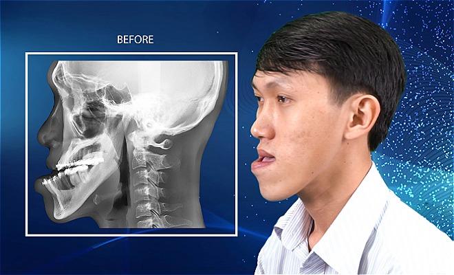 Chàng trai mặt lưỡi cày được tài trợ nửa tỷ đồng phẫu thuật hàm/ Thạc sĩ chạy xe ôm được tài trợ nửa tỷ đồng khắc phục mặt dị dạng