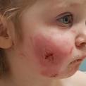 Bé gái một tuổi rưỡi bị bạn cắn 15 vết khắp cơ thể