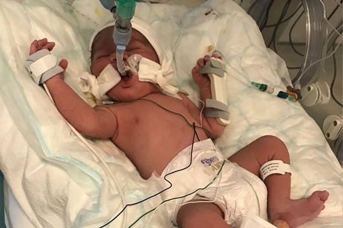 Bé Ibrahim hiện đã ổn định và đang tiếp tục được theo dõi ở bệnh viện sau khi được mổ đẻ. Ảnh: Mirror.