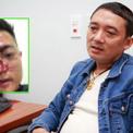 Nghệ sĩ hài Chiến Thắng bị cáo buộc thuê vệ sĩ đánh khán giả