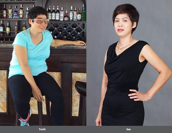 Chị Kim Huê (53 tuổi) giảm 13kg, 25cm bụng sau trị liệu tại Saigon Smile Spa. Chị chia sẻ: Cuộc sống của tôi cónhiều niềm vui hơn sau khi giảm cân.