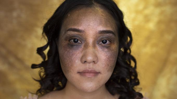 Cô dâu có khuôn mặt bị chàm được 'hô biến' trở nên xinh đẹp