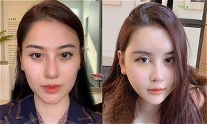 Hà Lade công khai gương mặt sau phẫu thuật thẩm mỹ
