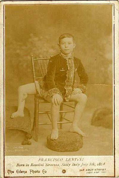 Frank Lentini gây chú ý khi có tới 3 chân, trong đó một chânvốn là bộ phận của người anh em sinh đôi ký sinh dính liền đã chết của Frank.
