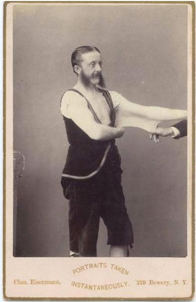 Một trong những nhân vật xuất hiện trong các bức ảnh đen trắng mới tìm thấy là Người đàn ông có làn da đàn hồi Felix Wehrle. Felix khiến khán giả xem xiếc kinh ngạc vì có thể kéo dài da mình ra một cách đáng kinh ngạc.