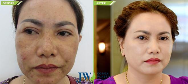 Nhờ vào công nghệ trị nám và trẻ hoá da toàn diện tại JW, chị Phụng sở hữu làn da trẻ đẹp.