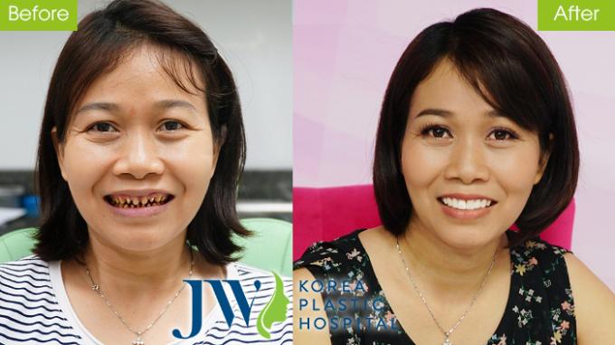 Chị Đoàn Thị Nguyện tự tin cười sau khi làm răng sứ.