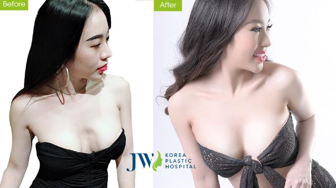 DJ Nhung Babie có vòng một quyến rũ sau khi nâng ngực.