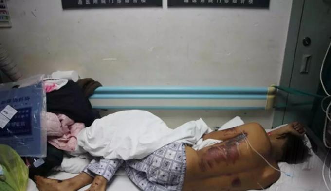 Guangtao bị nhiều vết thương, vỡ sọ, xuất huyết não và hiện điều trị tại bệnh viện thành phố Quý Dương, tỉnh Quý Châu, Trung Quốc. Ảnh: Sohu.