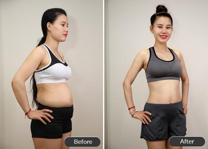 Giảm béo, trẻ hóa, xóa nhăn, trắng da sau một lần trị liệu giá ưu đãi
