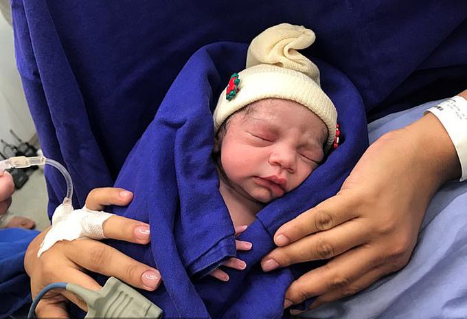 Bé gái được sinh ra từ tử cung của người chết tại bệnh viện Das Clinicas, Sao Paulo, Brazil vào tháng 12/2017. Ảnh: Hospital das Clinicas.