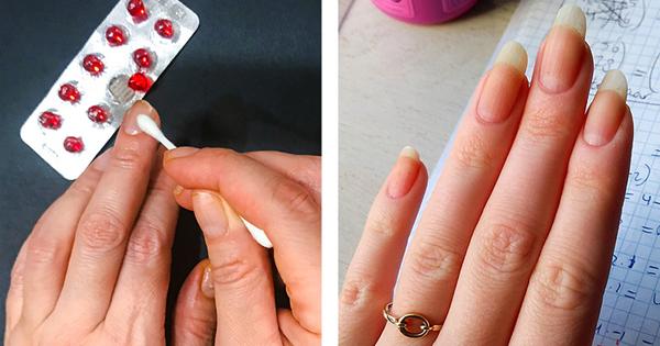 Thoa trực tiếp dầu vitamin E lên móng tay giúp cải thiện tuần hoàn máu và kích thích tăng trưởng cho móng tay.