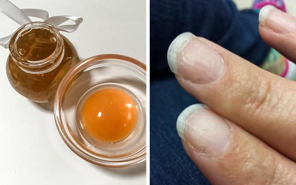 Lòng đỏ trứng chứa hàm lượng lớn vitamin A và các axit béo, giúp phục hồi móng tay yếu, mỏng, giòn hữu hiệu. Mật ong có khả năng kháng nấm. Trộn lòng đỏ trứng gà với 1/2 thìa cà phê mật ong ấm, thoa lên móng tay, để trong 15 phút rồi rửa sạch.