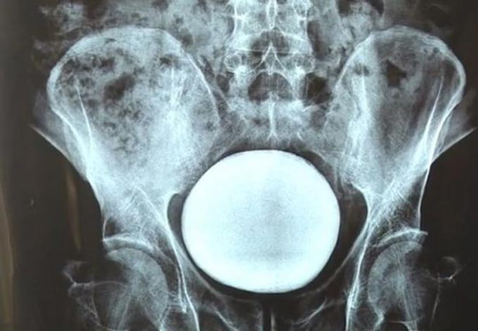 Viên sỏi chiếm gần hết bàng quang bệnh nhân trên phim chụp x-quang. Ảnh: AsiaWire.