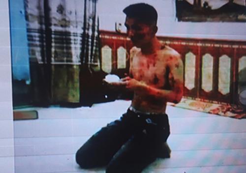 Một nạn nhân bị tra tấn dã man khi vi phạm nội quy của Công ty Nam Long.