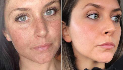 Chu trình chăm sóc da giúp cô gái trẻ xóa mờ vết tàn nhang