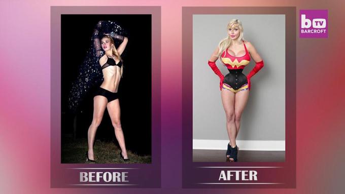 Pixee Fox trước và sau khi phẫu thuật thẩm mỹ.