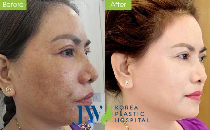 Khách hàng trị nám da, tàn nhang thành công tại trung tâm skincare - Bệnh viện JW.