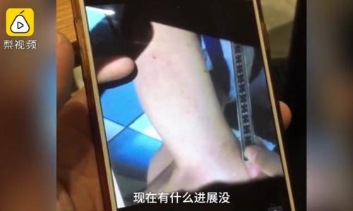 Giáo viên mầm non Trung Quốc bị cáo buộc đâm tăm vào trẻ