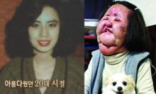 Cuộc đời đau khổ vì cuồng phẫu thuật thẩm mỹ của Han Mi Ok