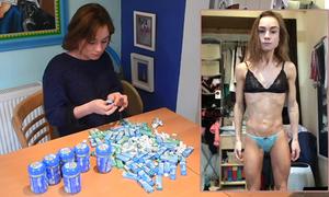 Nhịn ăn, nhai kẹo cao su để giảm cân, nữ dancer rước họa vào thân