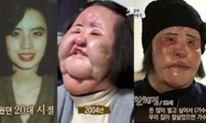 Thảm họa thẩm mỹ Hàn Quốc Han Mi Ok chết trong cô độc ở tuổi 57
