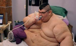 Chàng trai từng nặng gần 600 kg phẫu thuật lần hai để giữ mạng sống