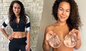 Biến chứng độn ngực khiến cơ thể mẹ hai con bốc mùi, tăng cân, rụng tóc