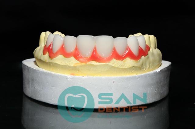 Dải màu tái tạo của Emax Press đa tầng khá đa dạng nhờ sử dụng công nghệ IPS e.max Press Multi material. Điều này cũng giúp răng sứ Emax Press có đặc tính thấu quang cao giống như ngà răng, trông tương tự răng thật.