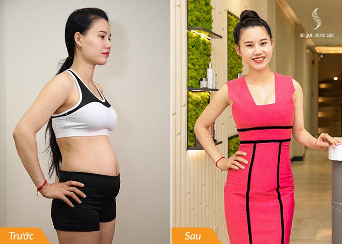Sau một lần trị liệu, chị Hà giảm được 30cm tổng số đo vùng bụng, cơ thể nhẹ nhõm, thon gọn. Chị hài lòng với phương pháp này vì ưu điểm nhanh chóng, không ảnh hưởng tới sức khỏe và sinh hoạt. Xem thêm cách bà mẹ bỉm sữa giảm cân tại đây.