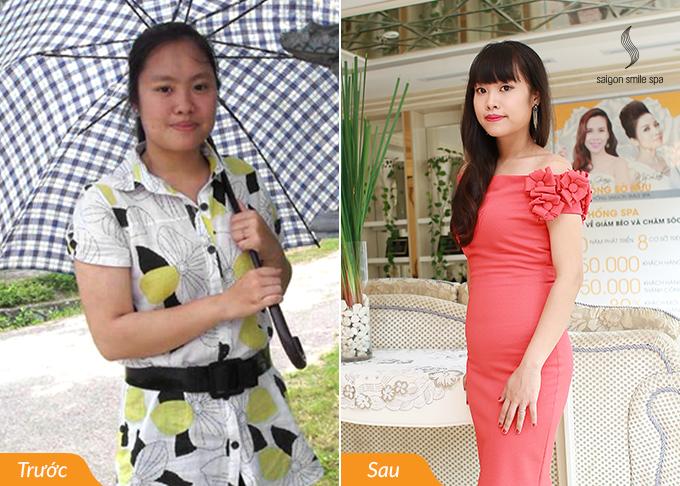 Minh Trang trước và sau giảm béo tại Saigon Smile Spa.