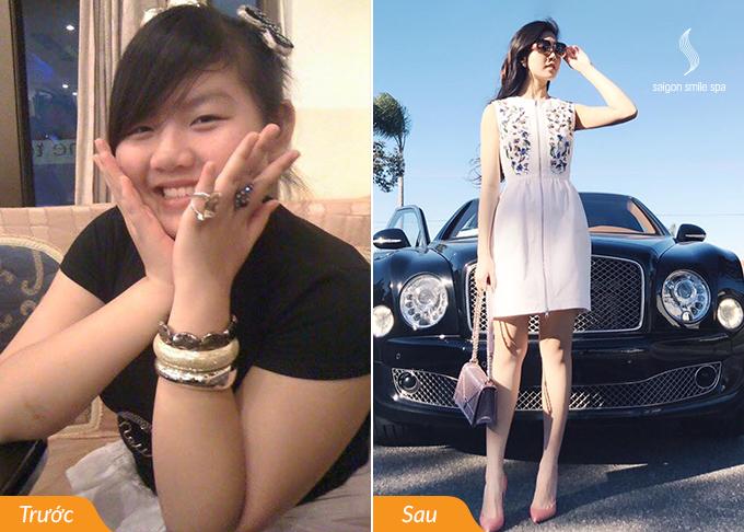 Tiểu Giang sở hữu đôi chân thon gọn sau giảm béo.