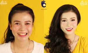 Cải thiện diện mạo, tự tin cười sau khi làm răng sứ