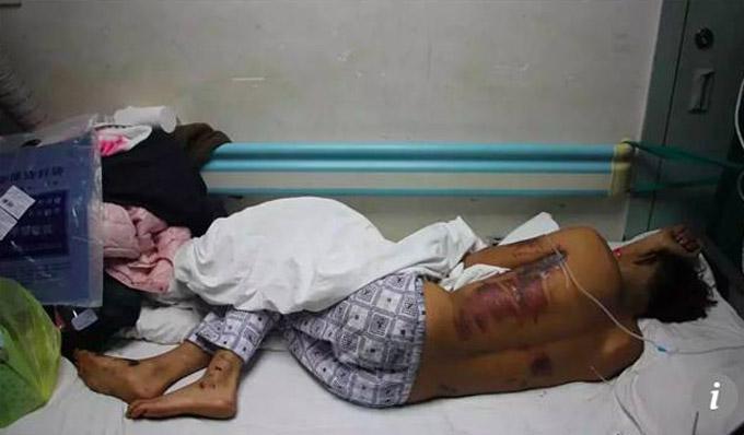 Ai Guangtao khi phải nằm trong bệnh viện. Ảnh: SCMP.