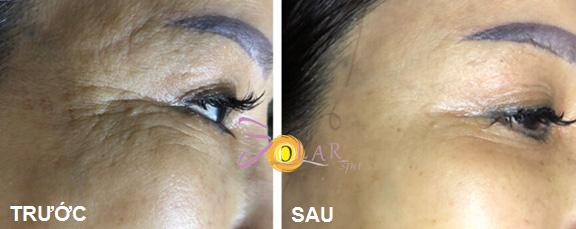 Các nếp nhăn sâu đuôi mắt được cải thiện sau khi sử dụng công nghệ Ultherapy.