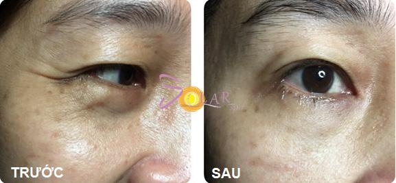 Hình ảnh bên trái thể hiện rõ nhất độ lão hóa của vùng da dưới mắt.
