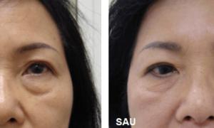 Xóa bọng mỡ mắt sau một liệu trình, không phẫu thuật