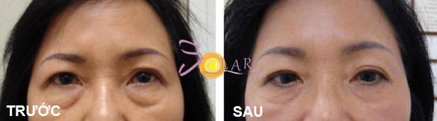 Bọng mắt được xóa tan khi khách hàng sử dụng công nghệ Thermage.