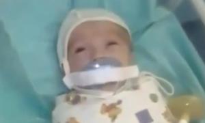 Trẻ sơ sinh bị dán băng dính vào miệng, nghi do khóc đêm