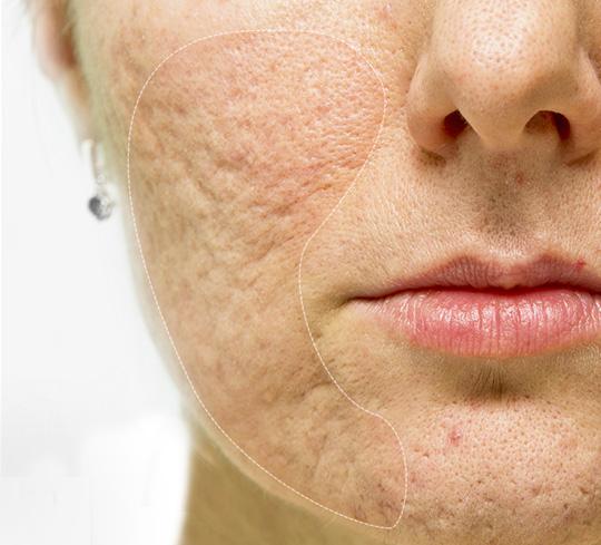 Làm mịn làn da lồi lõm do sẹo rỗ với ưu đãi hơn 50% - Ngôi sao