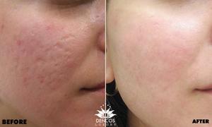 Làm mịn làn da lồi lõm do sẹo rỗ với ưu đãi hơn 50%