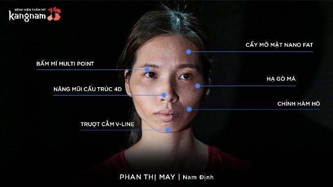 Những cuộc phẫu thuật Phan Thị May đã trải qua.