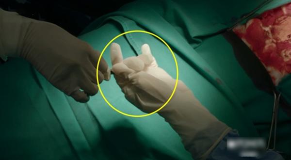 Ở một phân đoạn trong phòng phẫu thuật, bác sĩ đeo găng tay quá rộng khi cầm dao mổ. Đây là một trong nhiều sạn về chuyên môn y tế của bộ phim.