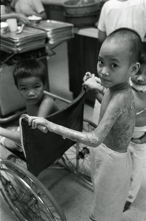 Kim Phúc bị bỏng và được điều trị ở bệnh viện Sài Gòn năm 1972. Ảnh: AP.
