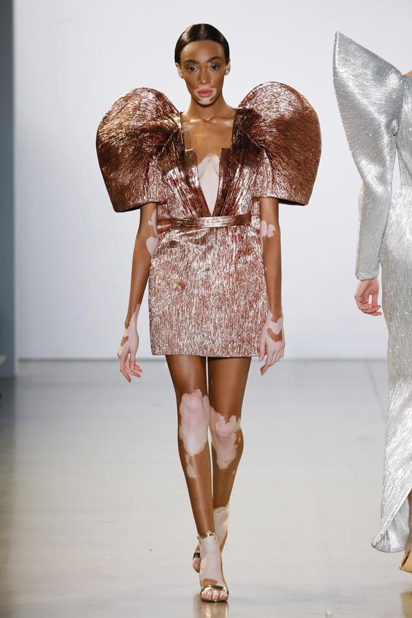 Người mẫu bạch biến Winnie Harlow ghi danh vào gia đình Victorias Secret từ năm ngoái.