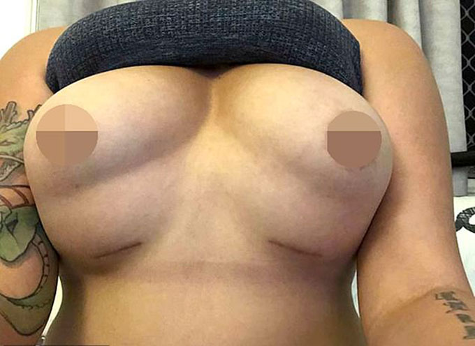 Bộ ngực như bốn quả bóng của Harvey sau khi phẫu thuật hỏng. Ảnh: Carters News Agency.