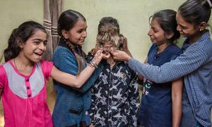 Thiếu niên Ấn Độ có gương mặt đầy lông